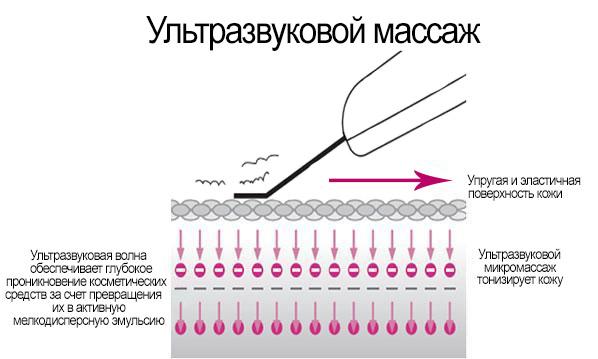 Ультразвуковий масаж