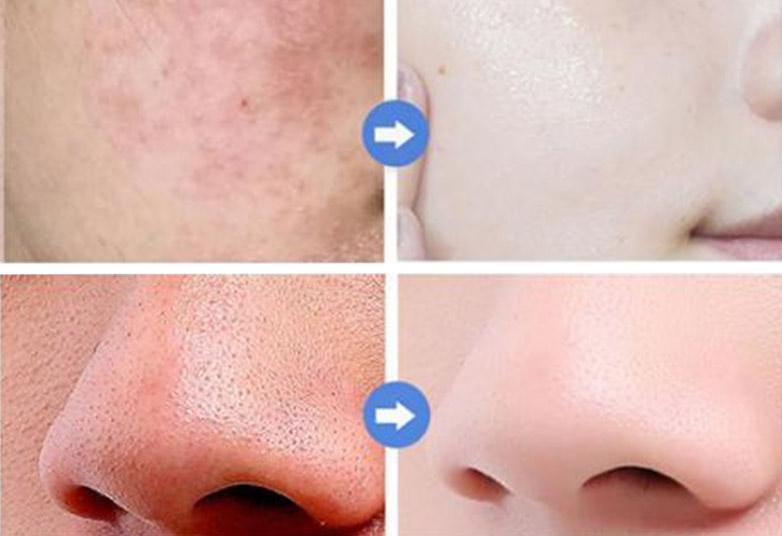 сироватка для обличчя з церамідамі до і після