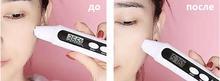 Удержание влаги в коже с помощью ионофореза
