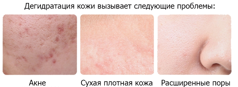 обезвоживание кожи