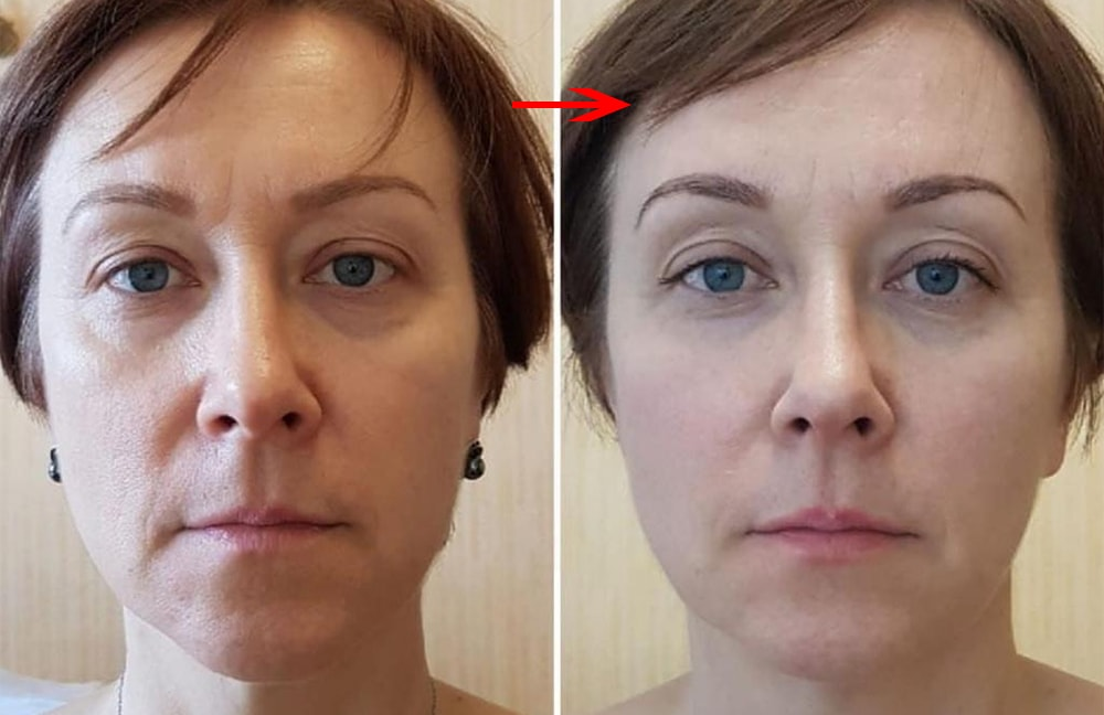 Вакуумный массаж лица: до и после