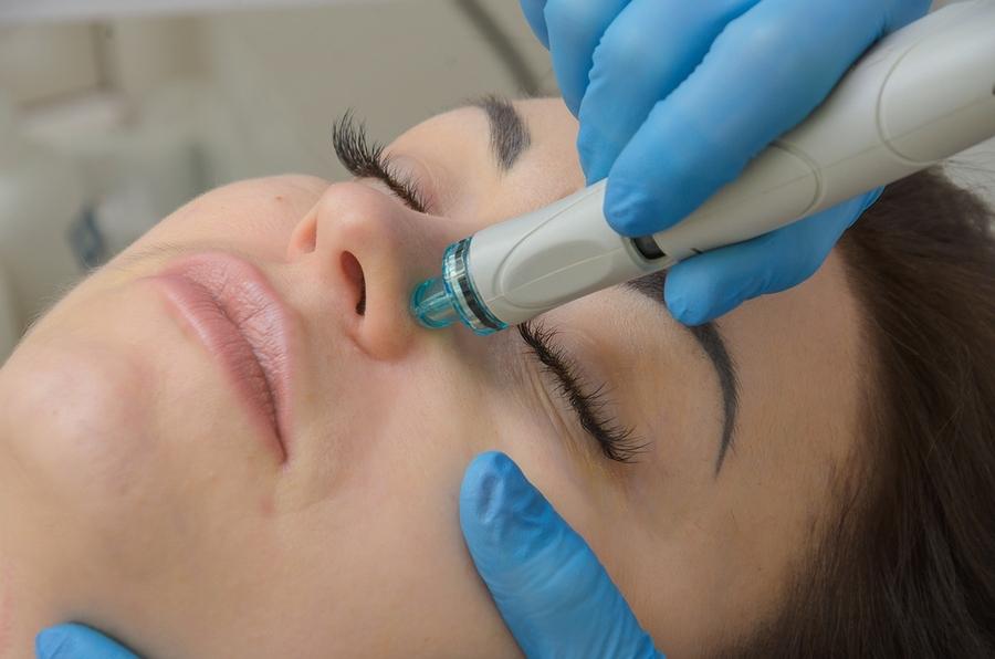 Аквапилинг процедура для кожи лица