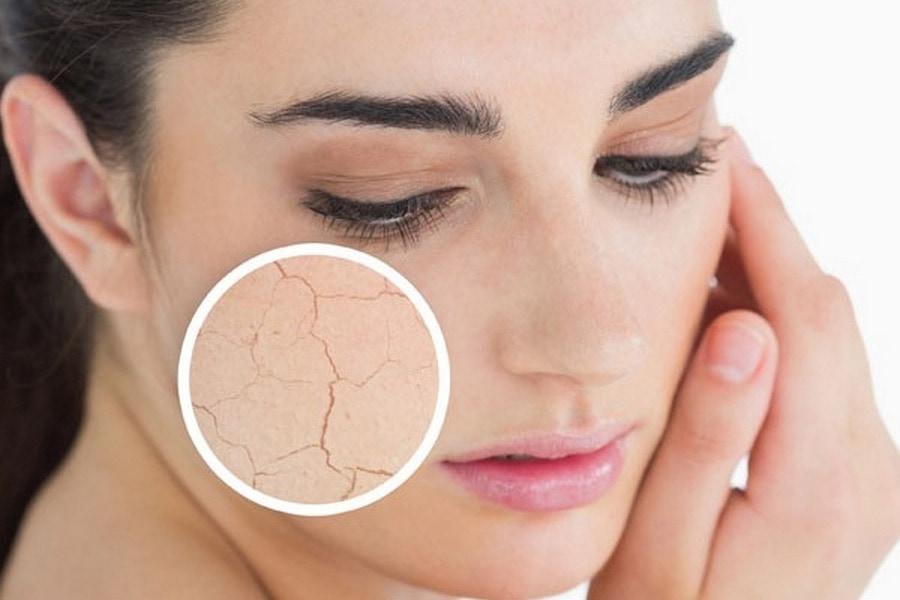 Какие средства для ухода подобрать к вашему типу кожи
