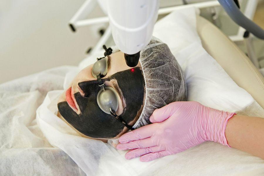Карбоновый пилинг лица (лазерная чистка)