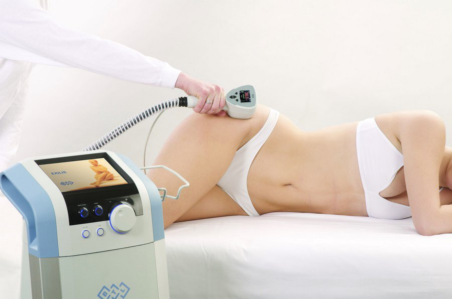 Процедура криополиза - сжигание жира холодом