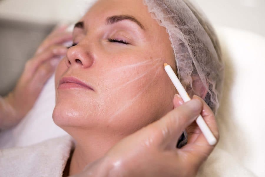 Мезонити или тредлифтинг в косметологии и в хирургии