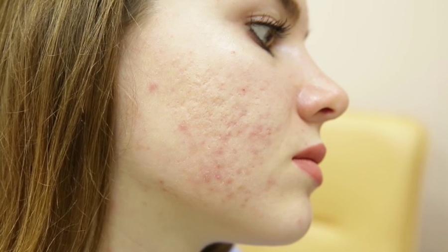   Удаление и лечение шрамов на лице