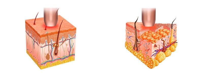 Виробництво колагену в шкірі