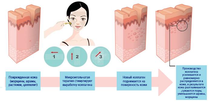 Как работает мезороллер (дермароллер)