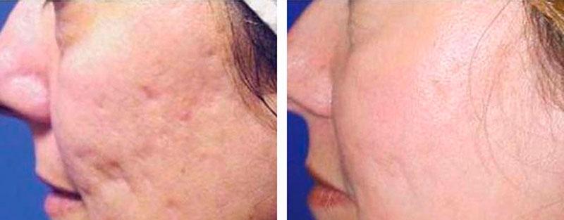 лікування шрамів постакне