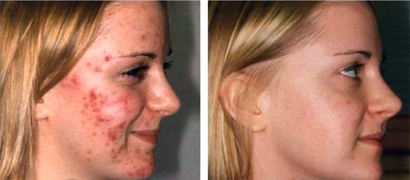 уход за проблемной кожи