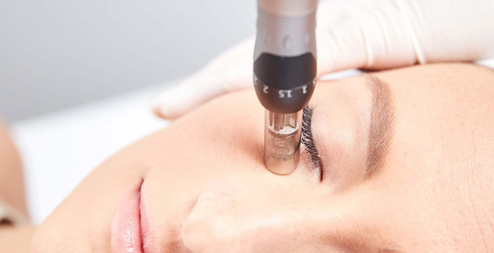 мезотерапия под глаза