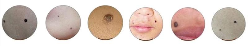 дефекты кожи, которые удаляются электрокоагулятором