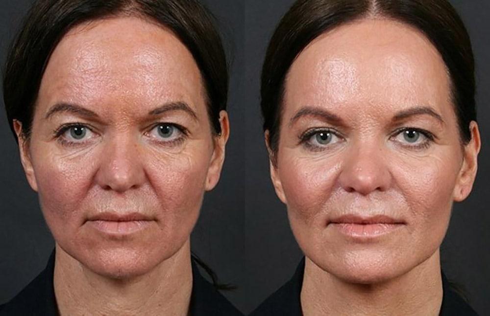 гликолевая кислота для лица до и после