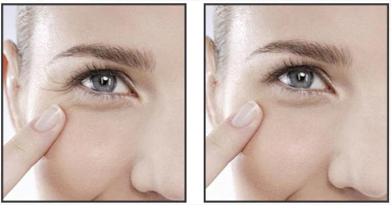 прибрати зморшки під очима