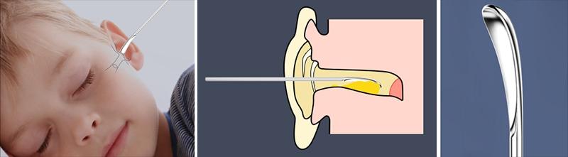 лопатка для чищення вух