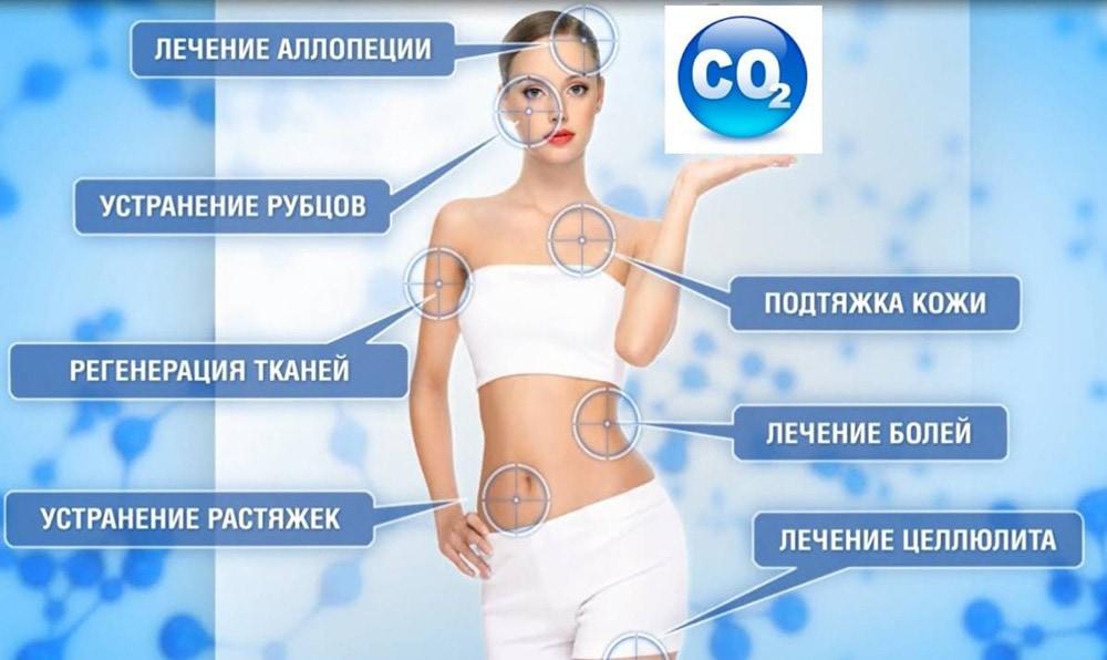 эффект от карбокситерапии