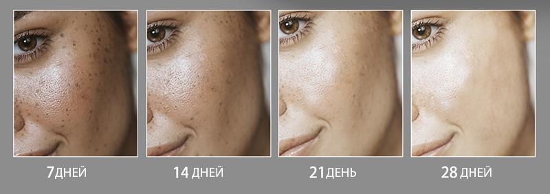 освітлення шкіри