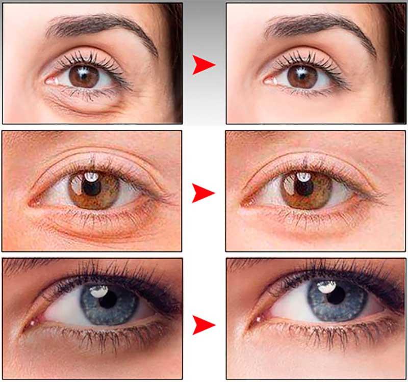 сироватка для шкіри навколо очей