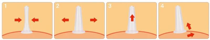 масаж силіконової баночкою