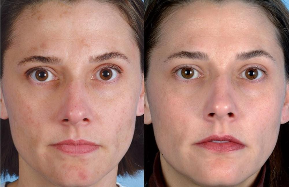 Ультразвуковой пилинг кожи лица