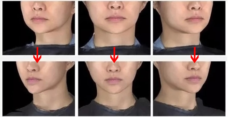 коллагеновые нити для лица до и после