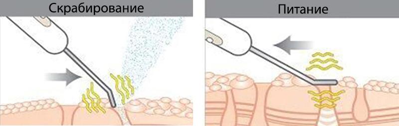 функції ультразвукового скрабера