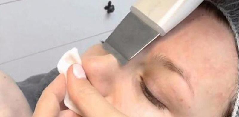 скрабірованіе шкіри