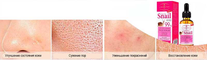 ефект від застосування сироватки